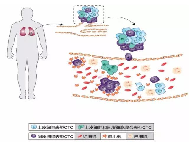 CTC循环肿瘤细胞的分类