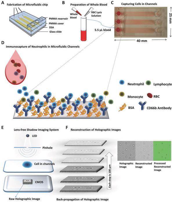监控血液中嗜中性粒细胞数量的新方法