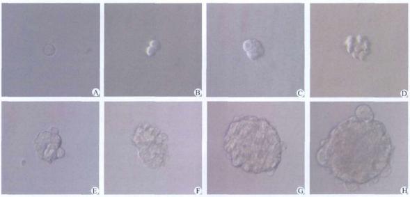 图4 动态观察96孔板培养的单个肿瘤干细胞