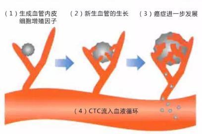 CTC检查是测定血液中流动癌细胞的一种检查