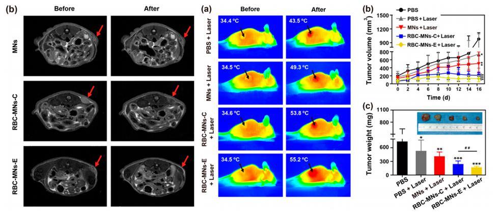 电穿孔包膜技术应用于肿瘤MRI成像与光热治疗
