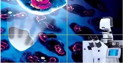 激光显微切割技术(LCM)