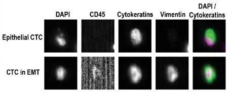 CellSearch 检测CTCs代表性例子的结果示意图