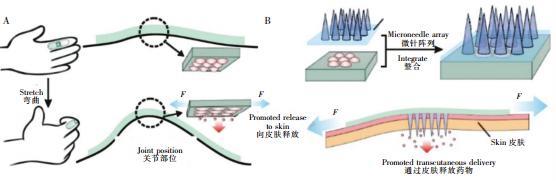 图2可穿戴式微流控药物释放装置。(A)内置药物的可穿戴式微流控芯片,通过手指的弯曲完成药物释放(B)内置药物的可穿戴芯片与微针阵列结合