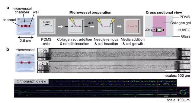 利用芯片制备体外人微血管。图片来源:EBioMedicine