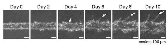 随着时间的推移,可以用显微镜观察到血管的新生。图片来源:EBioMedicine