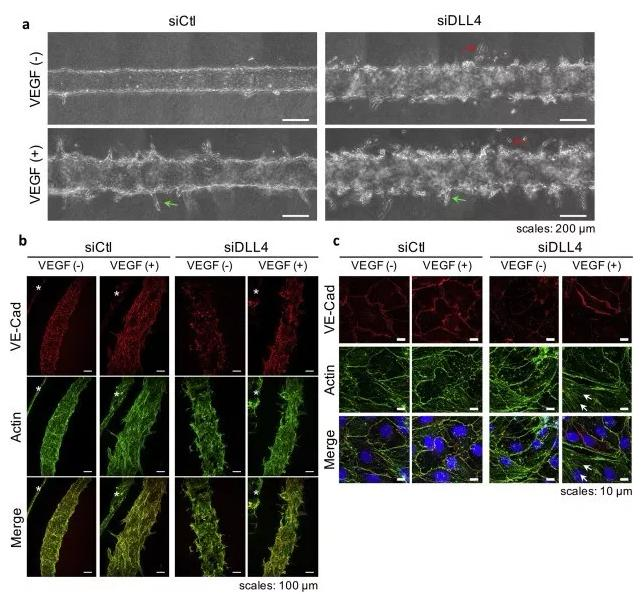 敲除DLL4将影响血管的新生和稳定性。图片来源:EBioMedicine