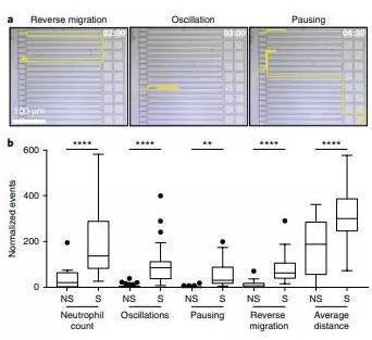 败血症特异性的中性粒细胞自发的迁移模式。
