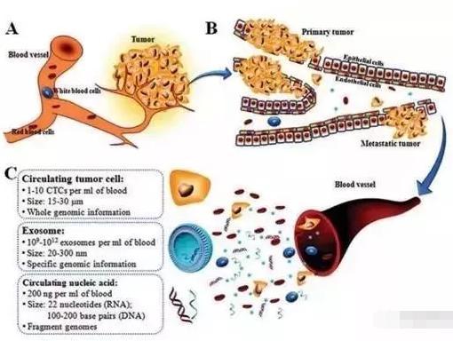 图1:癌症的形成(A)、转移(B)及循环肿瘤标志物的特点(C)
