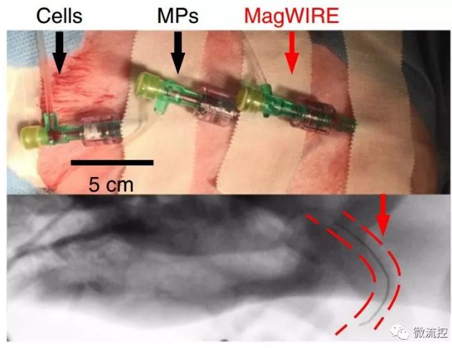 实际装置和造影下的磁线