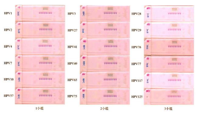 图2皮肤低危型别中3小组组内特异性检测