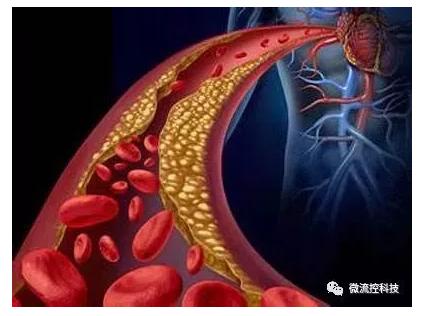 微流控芯片技术在心血管疾病中的应用