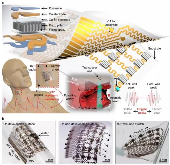 可实时监测体内深处动脉血压的柔性超声波贴片