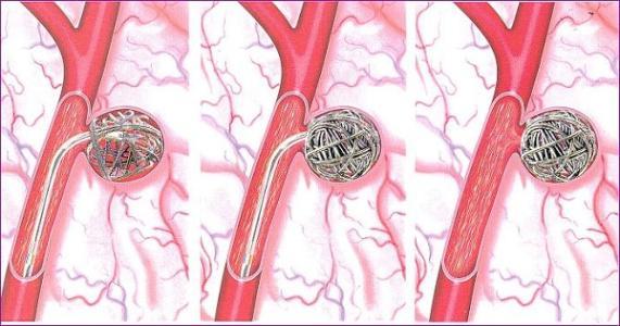 可拉伸的无线传感器可以监测脑动脉瘤的愈合