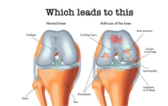 """微流控""""软骨""""芯片(Knee On Chip)用于关节炎研究"""