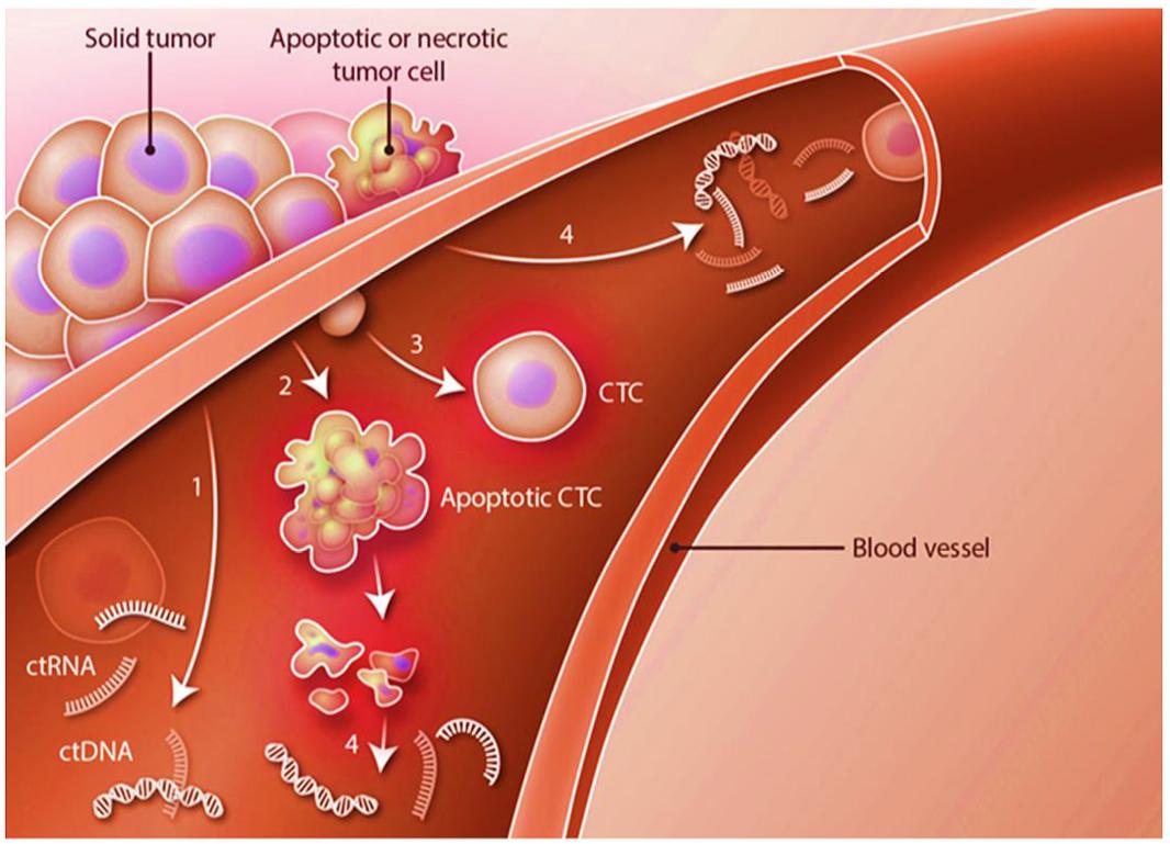 城大团队所研发的技术主要针对血液中的循环细胞(CTC),小至0.1毫米的肿瘤都能及早发现